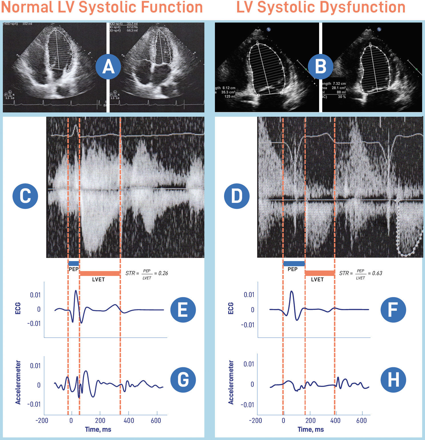 Cardiac time intervals can identify left ventricular systolic dysfunction (LVSD) in patients.